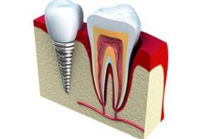 Implantaate