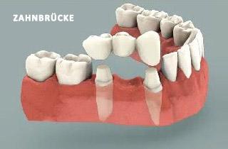 Zahnbruecke oder Implantat