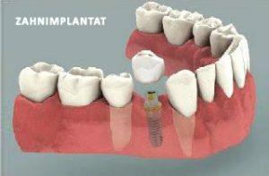 Implantate-oder-bruecke