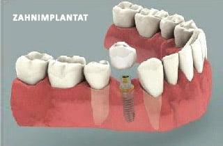 Implantat oder brücke