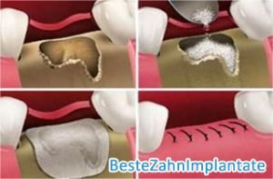 Knochenersatzmaterial - BesteZahnimplantate