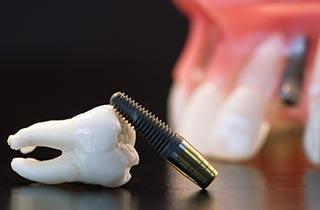 sofort belastbare zahnimplantate