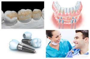 Zahnimplantate sind haltbar