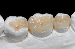 Zahnbrücke arten: Zahninlay