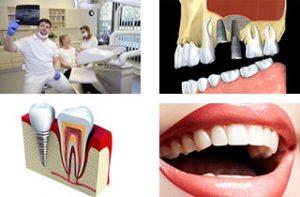 Zahnimplantate hersteller
