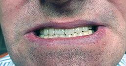 Zahnarzt in Ungarn Erfahrungen