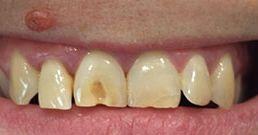 neue zähne vorher nachher