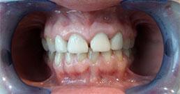 Zähne vorher und nachher