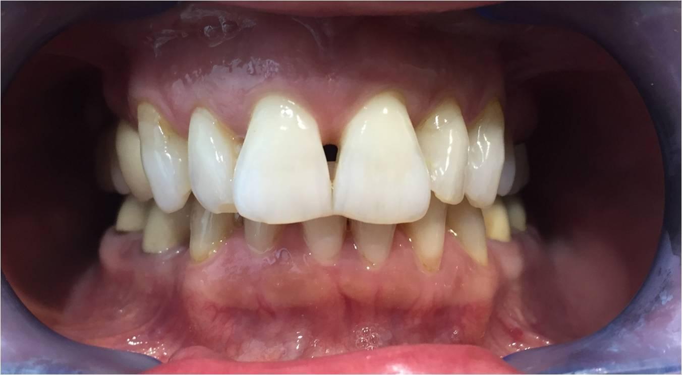 Zahnarzt Empfehlung